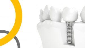 Prodvizhenie_stomatologii_Implantatsia_zubov