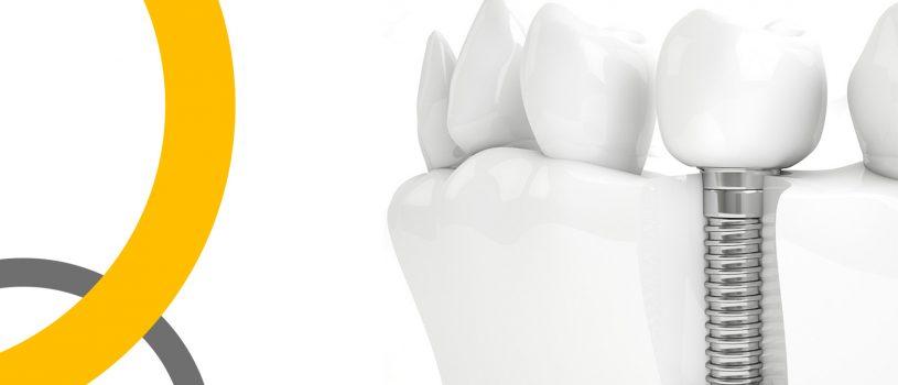 Продвижение стоматологии. Имплантация зубов