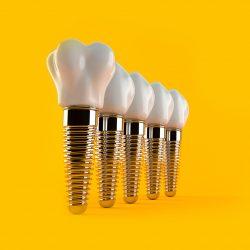 Продвижение стоматологии. Как продвигать стоматологическую клинику в соцсетях